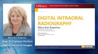 How to Capture Perfect Digital Intraoral Images